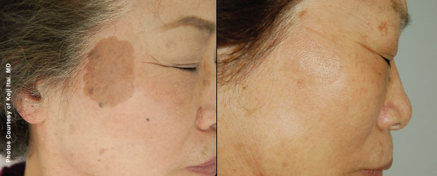 Forever Young BBL Photofacial Before and Afters in Milwaukee, Wisconsin at EvolvMD MedSpa and Body Contouring