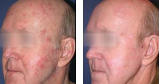 Fractional Laser Skin Resurfacing Forever Young BBL