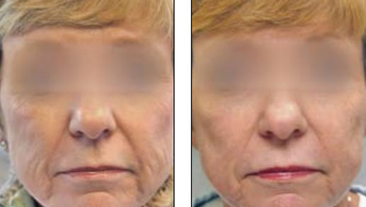 Fractional Laser Skin Resurfacing Before and After Photos in Wauwatosa ...