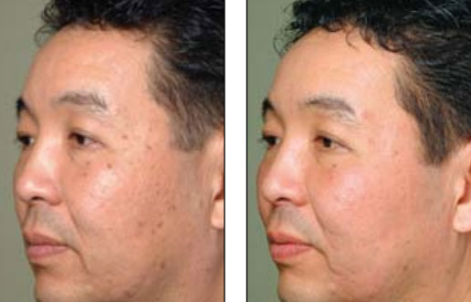 Frequently Asked Questions About Fractional Laser Skin Resurfacing in ...
