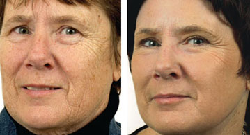 Fractional Laser Skin Resurfacing Before and Afters in Milwaukee, Wisconsin at EvolvMD MedSpa and Body Contouring