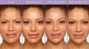 Laser Skin Resurfacing Wauwatosa EvolvMD