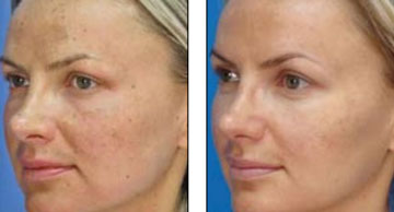 MicroLaserPeel Before and Afters in Milwaukee, Wisconsin at EvolvMD MedSpa and Body Contouring