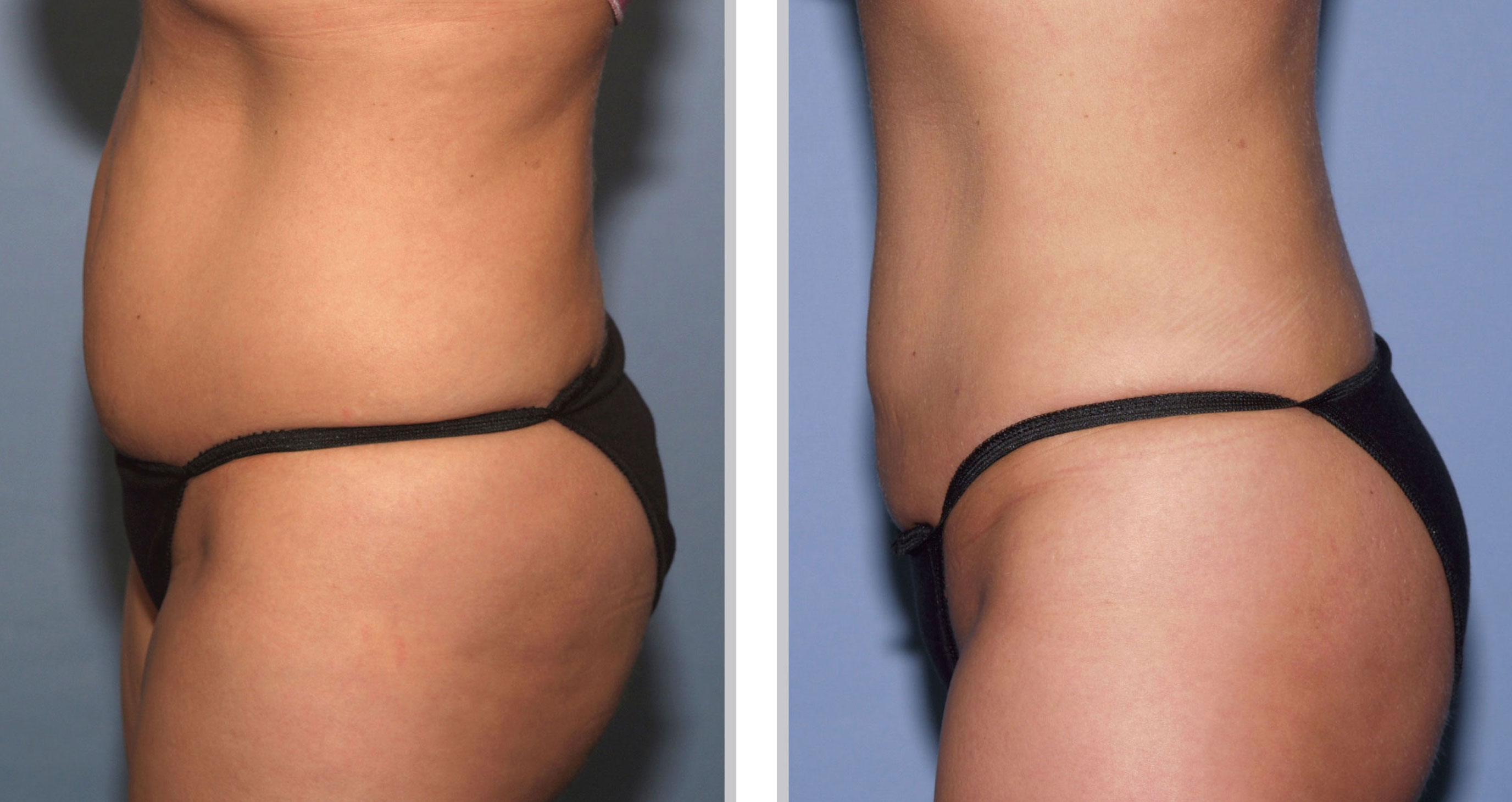 Cached Laser lipo before and after photos