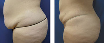 Laser Liposuction Before and Afters in Milwaukee, Wisconsin at EvolvMD MedSpa and Body Contouring