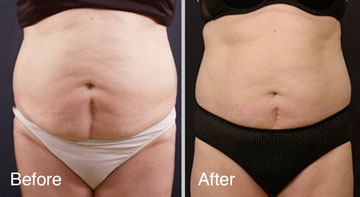 Vanquish Non-Surgical Fat Reduction Before and Afters in Milwaukee, Wisconsin at EvolvMD MedSpa and Body Contouring