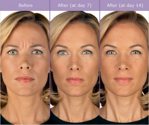 Botox Cosmetic Before and After in Milwaukee Wisconsin at EvolvMD MedSpa & Body Contouring