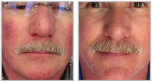 BBL Photo Facials in Milwaukee, WI from EvolvMD MedSpa