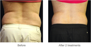 Vanquish offers no surgery, no downtime in Milwaukee, WI, at EvolvMD