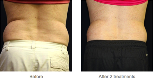 Vanquish vs coolsculpting the best option for non for Tattoo removal milwaukee