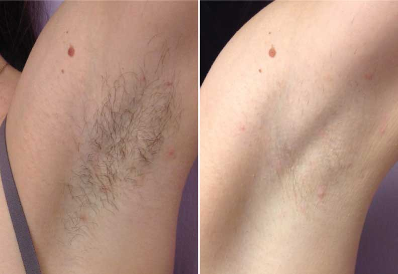 laser hair removal forever young bbl photfacial evolvmd - laser, Human Body