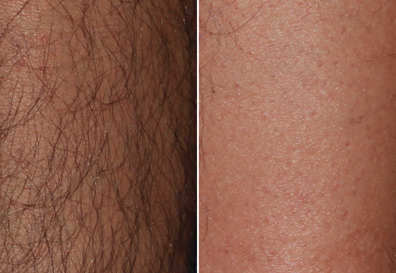 Laser Hair Removal Before and Afters in Milwaukee, Wisconsin at EvolvMD MedSpa and Body Contouring