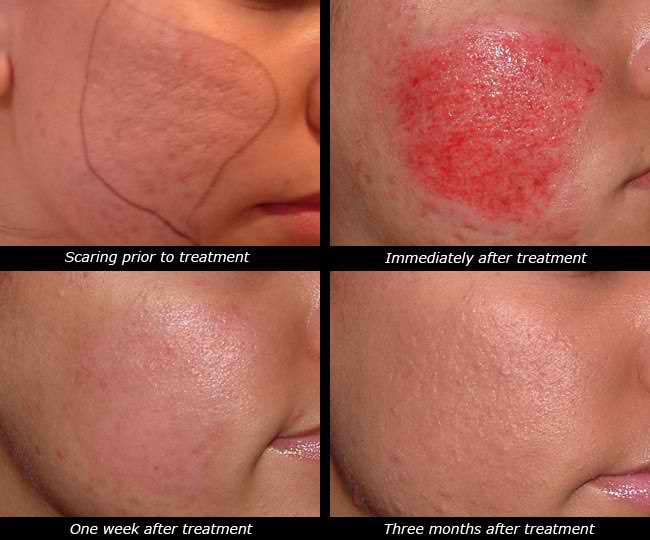 Microneedling Dermapen Before and After Milwaukee EvolvMD Medspa