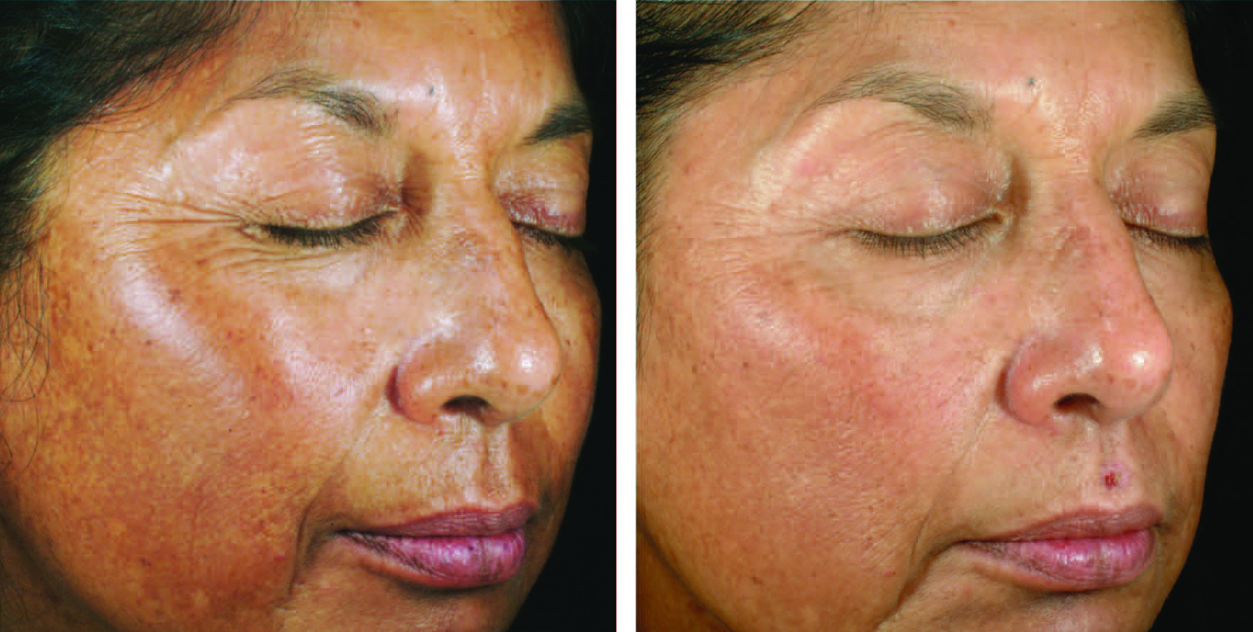 Before and after of Skin Medica chemical peel in Milwaukee, WI at Medspa