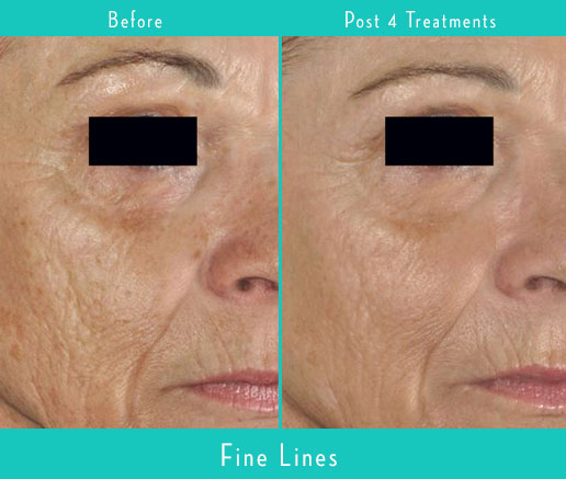 EvolvMD Milwaukee Before After PicoSure Acne Scars Skin Laser Wrinkles