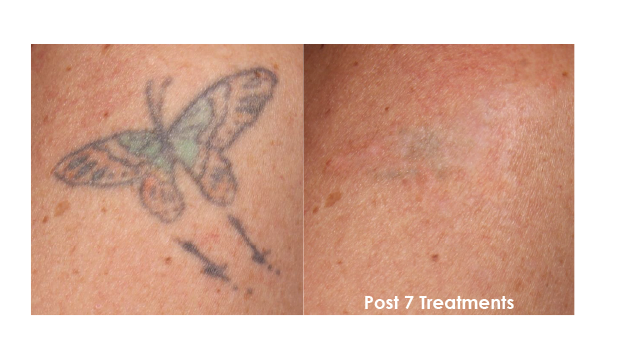 Laser tattoo removal evolvmd laser tattoo removal for Tattoo removal milwaukee