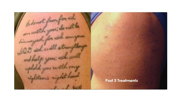 Laser Tattoo Removal Evolvmd Laser Tattoo Removal