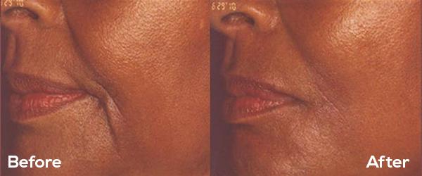 EvlolvMD - Vampire Facial Milwaukee | PRP Facial Treatments Milwaukee
