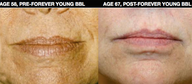 EvolvMD Milwaukee Photofacial