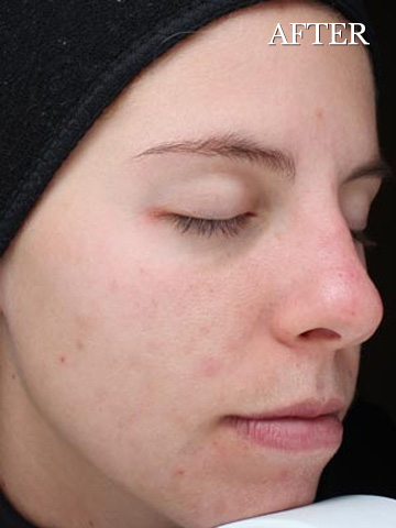 Post vipeel results