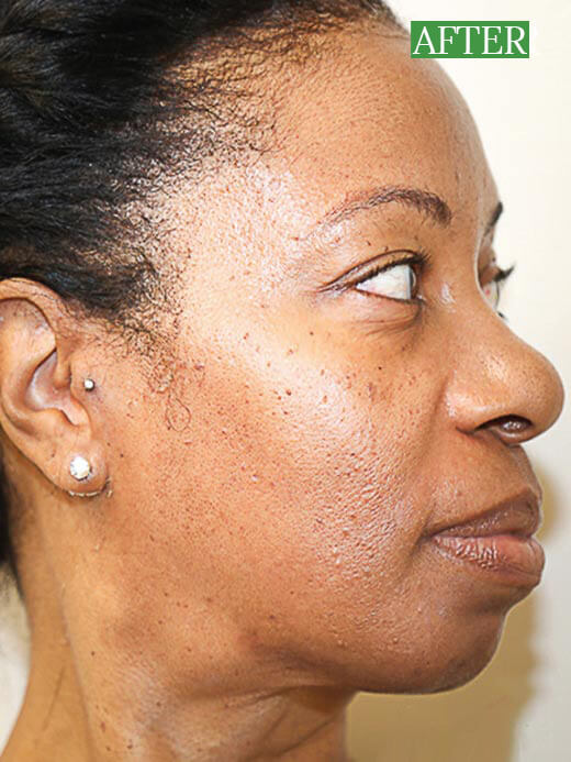 African American Woman Post vipeel results