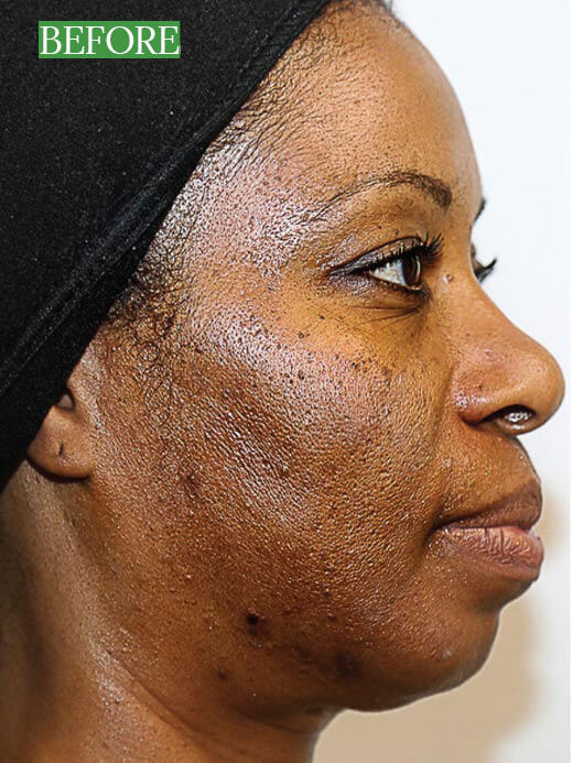African American Woman Before the viPeel