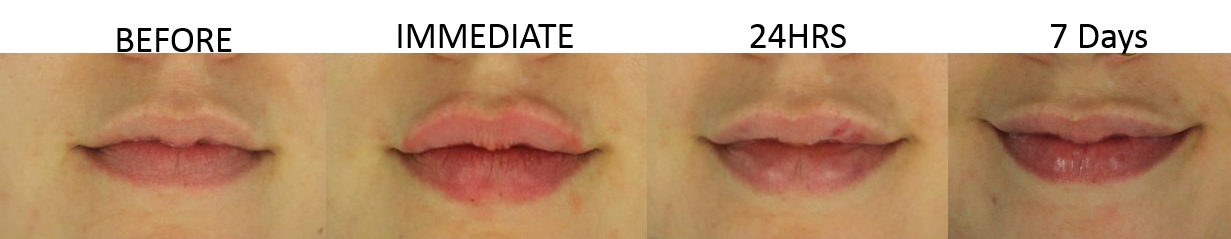 Restylane Lip Filler by Dr. Reiswig at EvolvMD Milwaukee WI