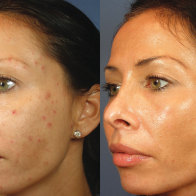 Skin Treatment like the ViPeel target acne scarring, melasma, pigmentation and wrinkles.