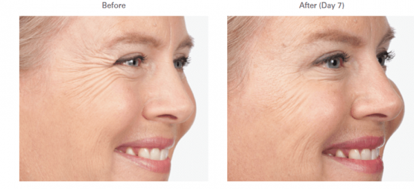 Botox at EvolvMD to treat forehead wrinkles, crow's feet, 11's