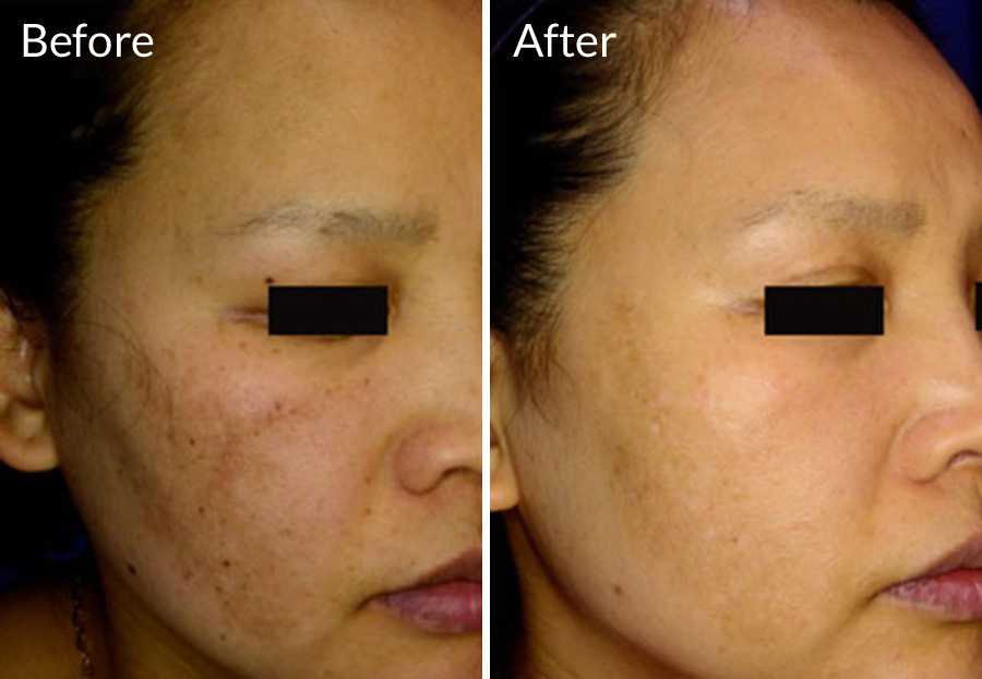 Focus Skin Rejuvenation uses the PicoSure Laser to minimize wrinkles, fine lines, age spots, brown spots, stretch marks at EvolvMD Medical Spa & Body Contouring in Milwaukee, WI, Pewaukee, New Berlin, Oakcreek, Shorewood, WI, Mequon Wi