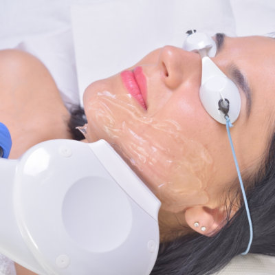 BBL Photofacials are used to treat skin concerns from Hyperpigmentation to Sun Spots at EvolvMD