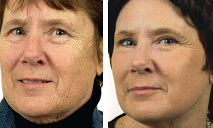 Fractional Laser Skin Resurfacing at EvolvMD Medical Spa & Body Contouring in Milwaukee, WI, servicing Pewaukee, New Berlin Shorewood, Mequon, WI is used to treat moderate and severe wrinkles, resurfacing the face to give it a tighter and more toned complexion