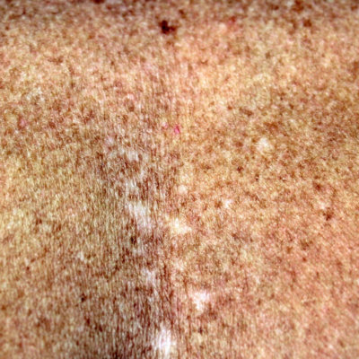 Hyperpigmention Skin Concerns Can Be Treated at EvolvMD in Milwaukee WI