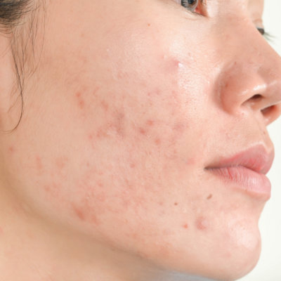 Get Rid of Acne- Skin Concerns that EvolvMD Treats in Milwaukee, WI