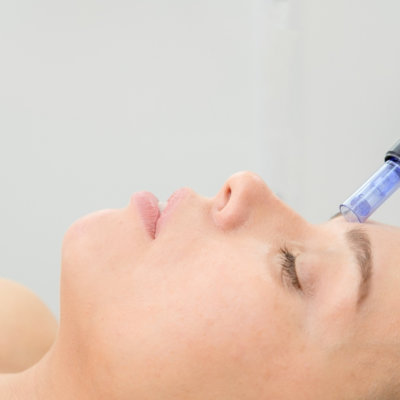 EvolvMD in Milwukee WI has the mot technologically advanced Microneedlineedling Treatments to address skin concerns like pore size, acne scarring and wrinkles.