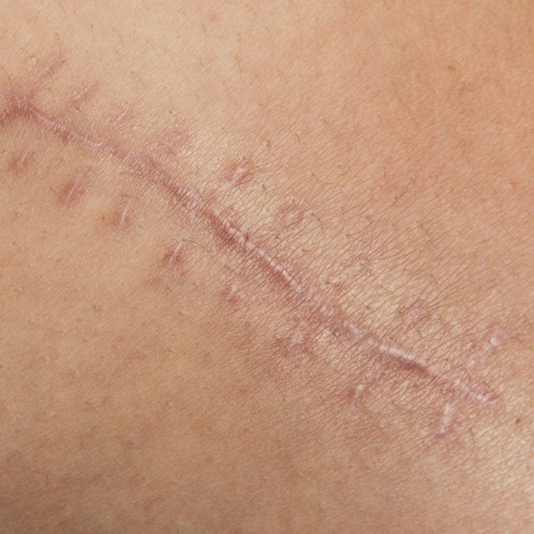 EvolvMD in MIlwaukee , WI Treats Skin Concerns like Acne Scarring