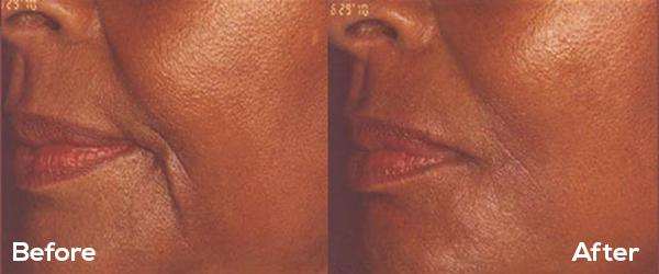 PRP Facial at EvolvMD MedSpa & Body Contouring in Milwaukee, WI