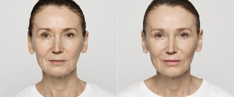 Restylane Lyft Before and After to Treat Moderate to Severe Wrinkles at EvolvMD, Wisconsin's Leading MedSpa in Milwaukee, WI