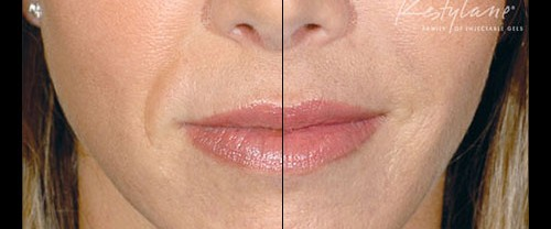 Restylane filler in Milwaukee, Wi is a solution to volume loss,, thinning lips and a more youthful appearance