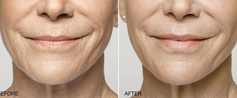 Restylane Silk used to add volume and fill in lip wrinkles at EvolvMD MedSpa & Body Contouring in Miilwaukee, WI, Pewaueek, Wauwatosa, New Berlin, Mequon, Shorewood and Oak Creek