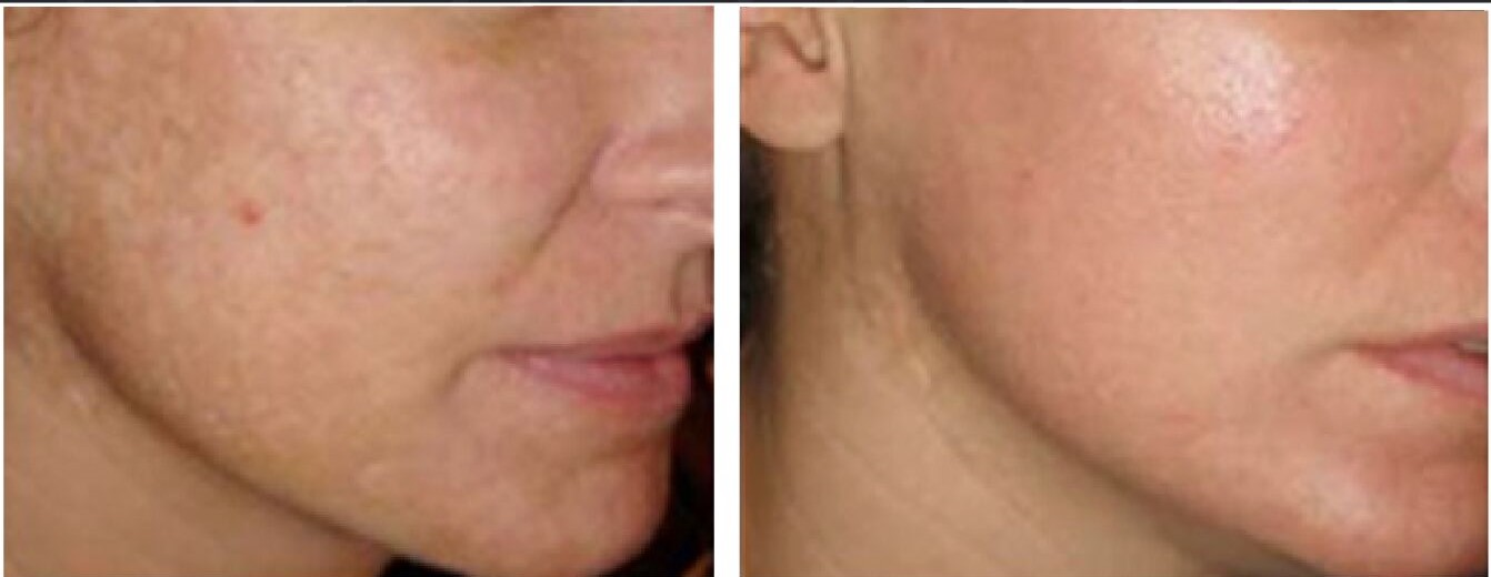 Scarlet Microneedling treatment in Milwaukee, WI at EvolvMD used to minimize pores and acne scarring