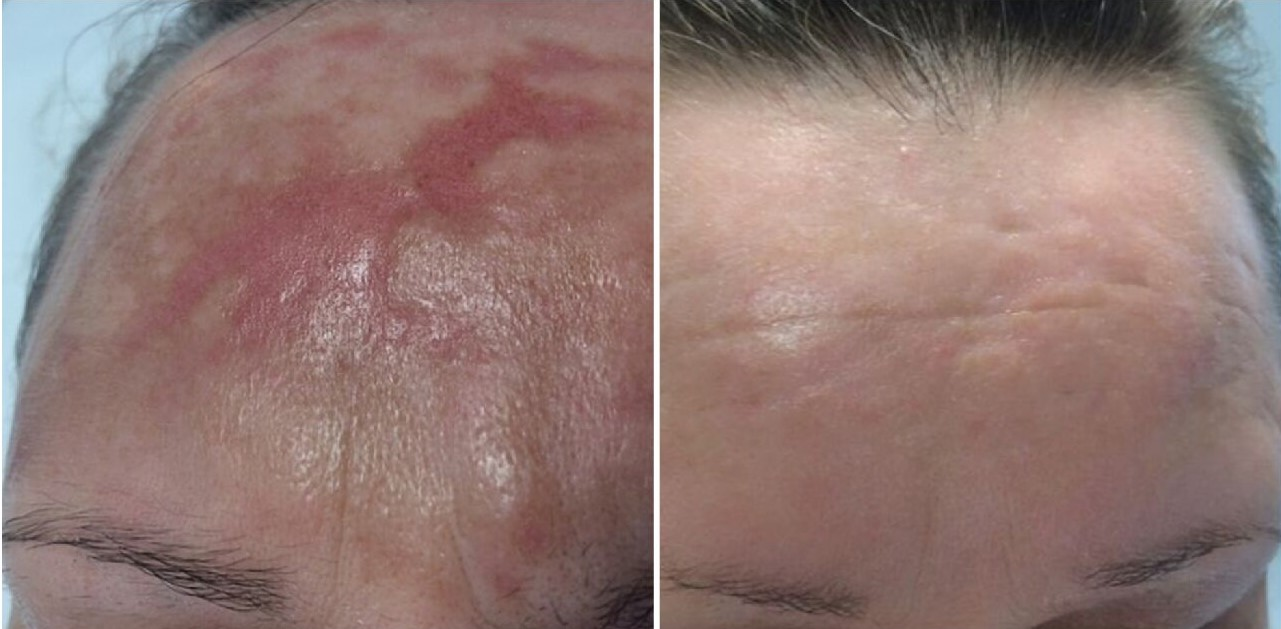 Scarlet Radiofrequency Microneedling used to treat severe burn scars.