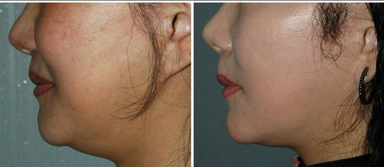 Scarlet SRF Non-Surgical Facelift in Milwaukee, WI: used to lift the neck and tighten wrinkles