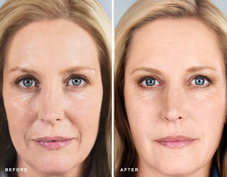 Sculptra at EvolvMD Medical Spa in Wauwatosa, WI stimulates the body's own collagen to give skin a more youthful appearance over time