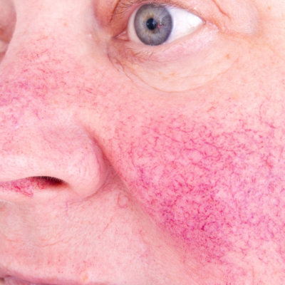 Rosacea is a common skin concern that is treatable with a BBL Photofacial