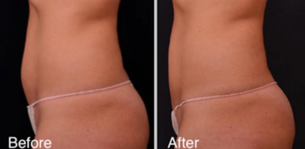 Vanquish Non-Surgical Fat Reduction