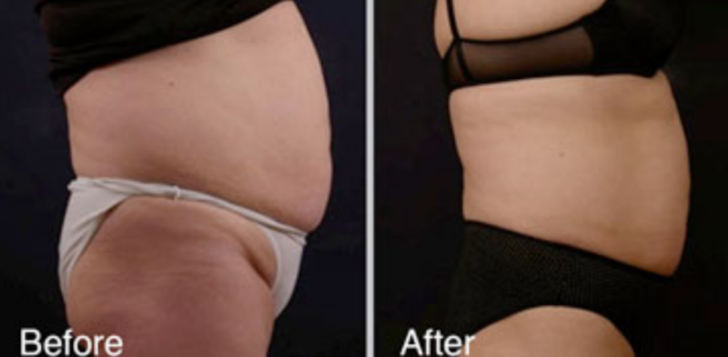 Vanquish Non-Surgical Fat Reduction in Wauwatosa, WI EvolvMD