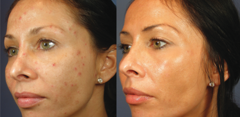 ViPeel at EvolvMD MedSpa in Milwaukee, WI to achieve flawless skin, minmize pores, wrinkles and reduce the appearance of melasma